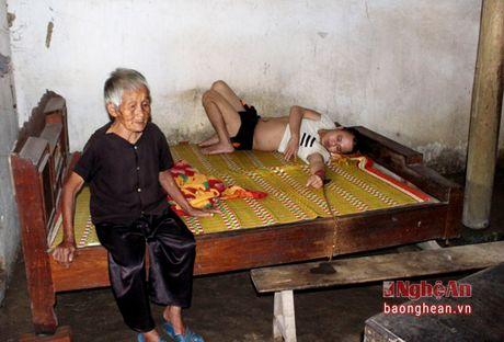 Xot thuong cu ba gan 90 tuoi, nuoi con trai bi tam than - Anh 2