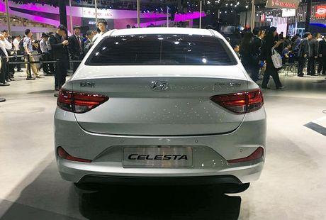 Hyundai lai co sedan co nho Celesta moi gia 'sieu re' - Anh 4