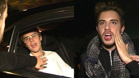 Ca sy Justin Bieber dam nguoi ham mo chay mau mieng - Anh 1