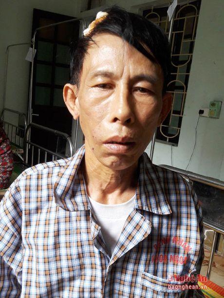 Cac nhan chung vu 'linh muc vo co danh nguoi' o An Hoa len tieng! - Anh 2