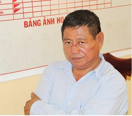 Trung ta Campuchia ban chet nguoi bi de nghi truy to - Anh 1