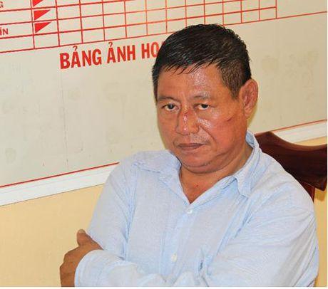De nghi truy to Trung ta Cong an Campuchia ban chet nguoi - Anh 1