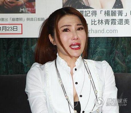 Giai nhan Trung Quoc mat bien dang khi tiem botox qua da - Anh 1
