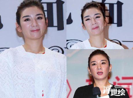 Giai nhan Trung Quoc mat bien dang khi tiem botox qua da - Anh 3