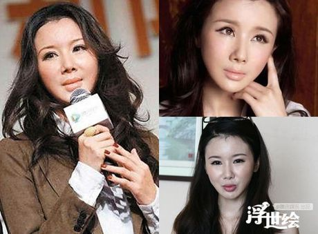 Giai nhan Trung Quoc mat bien dang khi tiem botox qua da - Anh 4