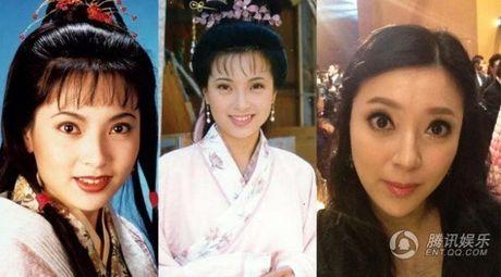 Giai nhan Trung Quoc mat bien dang khi tiem botox qua da - Anh 5