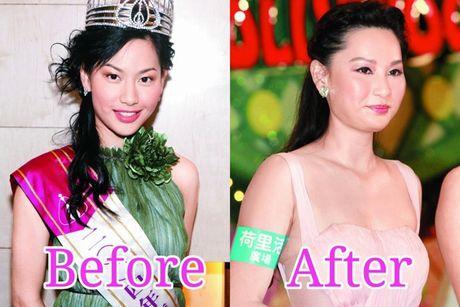 Giai nhan Trung Quoc mat bien dang khi tiem botox qua da - Anh 7