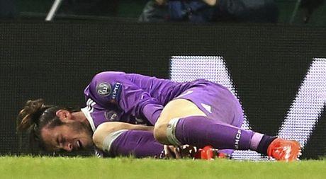 Gareth Bale: 'Toi on va se lam tat ca de tro lai' - Anh 1