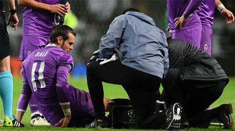 Nhung van de gay dau dau cho Real Madrid khi vang Bale - Anh 1