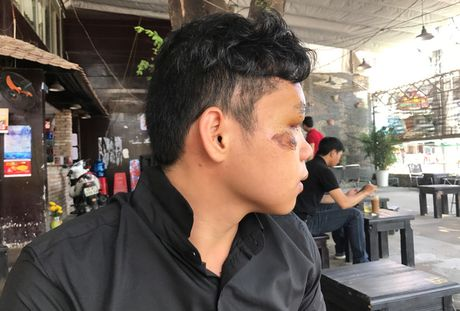 Nam sinh thoat chet than ky duoi gam xe: Ngo da o the gioi khac - Anh 2