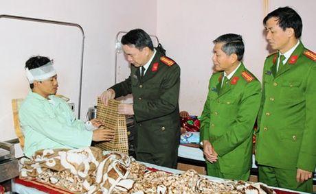 Ha Nam: Truong don cong an bi thuong khi kiem tra doi tuong nghi trom cap tai san - Anh 1