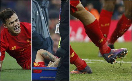Coutinho dinh chan thuong kinh hoang khi Liverpool ha Sunderland 2-0 - Anh 2