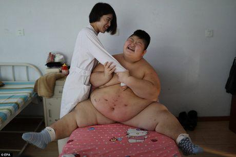 Cau be 11 tuoi nang 146kg dung lua dot mo bung - Anh 4