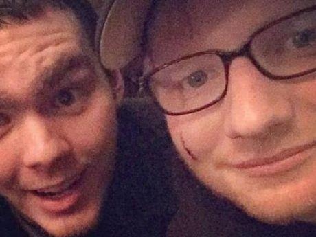 Ed Sheeran hoang hon vi bi Cong chua Anh... 'rach mat' - Anh 4