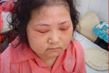 Hoi chung Cushing – benh ly thuong gap - Anh 1