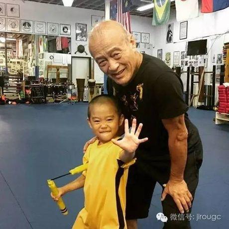 Choang voi truyen nhan 6 tuoi bung 6 mui cua Ly Tieu Long - Anh 13