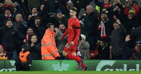 Woodburn va nhung cau thu tre nhat tung ghi ban cho Liverpool - Anh 1