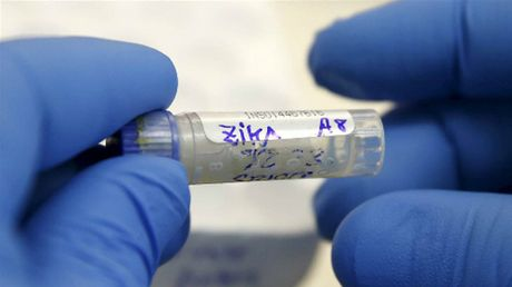 Nguoi nghi nhiem vi rut Zika duoc xet nghiem mien phi - Anh 1