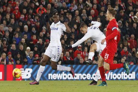 Sao tre toa sang, Liverpool lap ky luc o League Cup - Anh 4