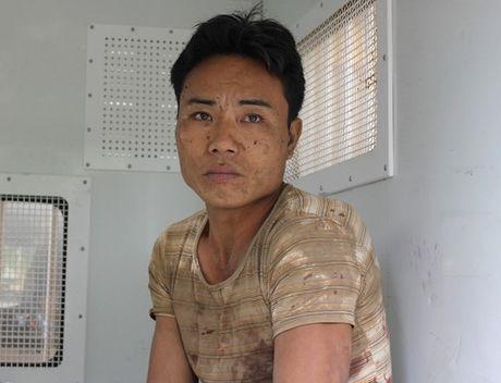 Luat su phan tich nhung tinh tiet to tung vu tham sat Ha Giang - Anh 4
