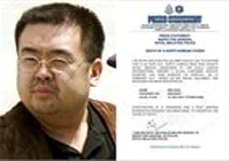Than the ky la cua nu nghi pham giet Kim Jong Nam - Anh 7