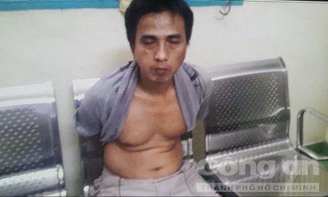 Hiep si Minh Tien bi phoi nhiem HIV khi truy bat ten cuop lieu linh - Anh 1