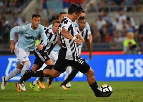 Juventus 2-3 Lazio: Ngay Inzaghi len tieng - Anh 6