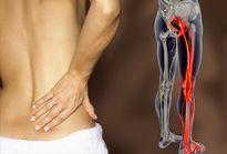 Bài thuốc chữa đau dây thần kinh hông