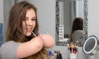Teen girl cụt tứ chi vẫn trở thành beauty blogger đình đám