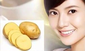 Tuyệt chiêu giúp trị nám da bằng khoai tây