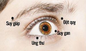 Có dấu hiệu này ở mắt không khám ngay bạn sẽ hối hận cả đời