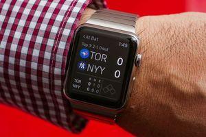 Sử dụng tính năng LTE trên Apple Watch 3