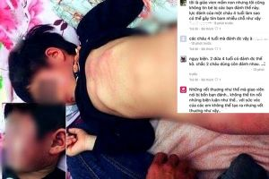 Tranh cãi gay gắt vụ bé 4 tuổi bị đánh đến bầm tím người trong lớp học