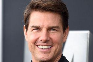 Dàn sao đình đám Hollywood biến hàm răng xấu thành lợi thế riêng