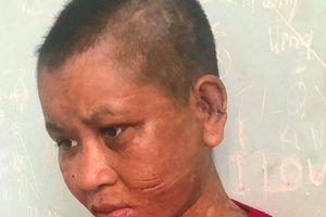 Kon Tum: Thân thể, mặt của cô gái chi chít vết thương, nghi bị chủ nhục hình?