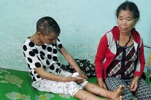 Chủ tịch tỉnh Gia Lai chỉ đạo điều tra vụ cô gái làm thuê bị bà chủ dùng nhục hình