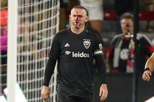 Rụng rời với gương mặt đầy máu vì chấn thương của Rooney