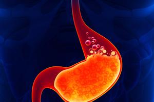 Đây là 3 cách làm sạch ruột bạn phải biết