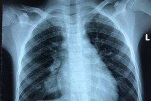 Bé trai suýt vỡ động mạch phổi do mắc bệnh hiếm gặp