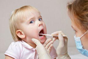 Trẻ bị viêm họng - Khi nào nên dùng kháng sinh điều trị bệnh?