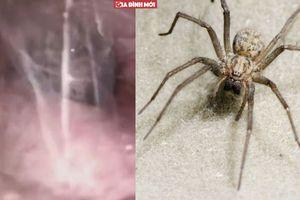 Clip nhện to 5 cm làm tổ, giăng tơ trong tai người đàn ông
