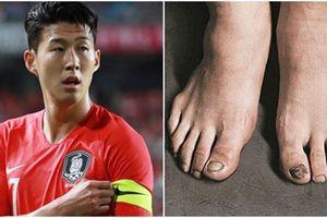 Bàn chân Son Heung-min bầm dập sau quãng thời gian cày ải liên tục