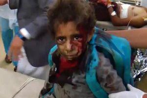 Nã tên lửa vào xe bus trường học Yemen: Sẽ bồi thường