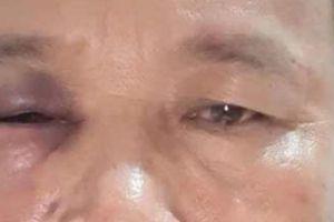 Quảng Bình: Chủ tịch bị nguyên chủ tịch xã đánh bầm mắt