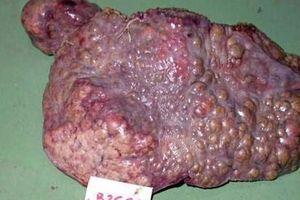 Bác sĩ gan mật chia sẻ 3 cách phát hiện ung thư gan