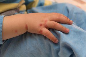 Giảm vết thâm muỗi đốt cho bé đơn giản bằng cách ít ai biết