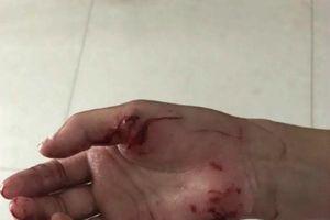 Cho cá ăn ở hồ công cộng, bé 9 tuổi bị 'thủy quái' cắn vào tay